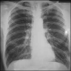 Global Pneumoconiosis Market Growth Opportunities, Market drivers and Forecast 2021-2027